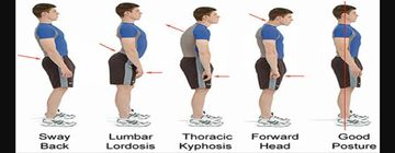 postural-assessment-physiotherapy-south-delhi-360x140
