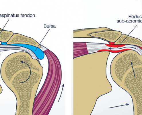 physioexpert-shoulder-impingement